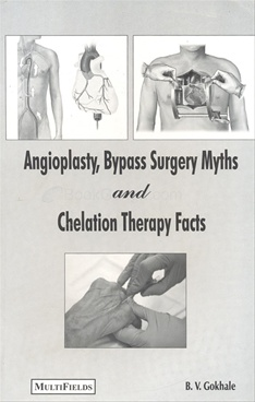 Angioplasty, Bypass Surgery Myths And Chelation Therapy Facts