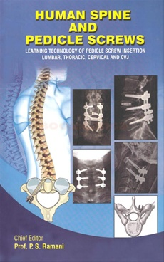 Human Spine And Pedicle Screws